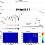 CRF Mediates Stress-Induced Pathophysiological High-Frequency Oscillations in Traumatic Brain Injury