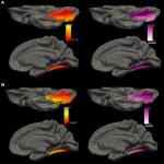 Lingual Gyrus Surface Area Is Associated with Anxiety-Depression Severity in Young Adults: A Genetic Clustering Approach