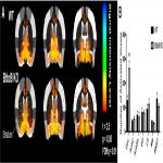 The Role of BTBD9 in Striatum and Restless Legs Syndrome