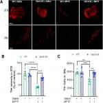 The SUMO Conjugase Ubc9 Protects Dopaminergic Cells from Cytotoxicity and Enhances the Stability of α-Synuclein in Parkinson's Disease Models