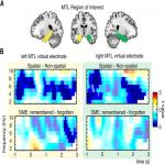 Spatial Mnemonic Encoding: Theta Power Decreases and Medial Temporal Lobe BOLD Increases Co-Occur during the Usage of the Method of Loci