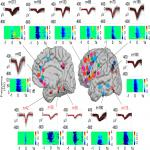Distribution, Amplitude, Incidence, Co-Occurrence, and Propagation of Human K-Complexes in Focal Transcortical Recordings