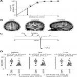 CRPS Is Not Associated with Altered Sensorimotor Cortex GABA or Glutamate