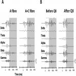 Distinct Age-Dependent C Fiber-Driven Oscillatory Activity in the Rat Somatosensory Cortex