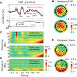 Successful Encoding during Natural Reading Is Associated with Fixation-Related Potentials and Large-Scale Network Deactivation