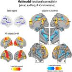Cortico–Cortical Connections of Primary Sensory Areas and Associated Symptoms in Migraine