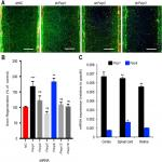 Inhibition of Poly-ADP-Ribosylation Fails to Increase Axonal Regeneration or Improve Functional Recovery after Adult Mammalian CNS Injury