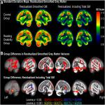 Gray Matter Features of Reading Disability: A Combined Meta-Analytic and Direct Analysis Approach